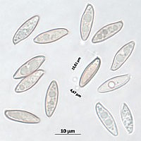 Подберёзовик обыкновенный (Leccinum scabrum). Споры.