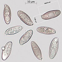 Мокруха пурпуровая (Chroogomphus rutilus). Споры.