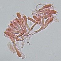 Стробилюрус черенковый (Strobilurus tenacellus). Базидии.