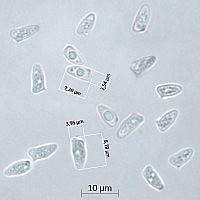 Лепиота гребенчатая (Lepiota cristata). Споры.