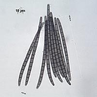 Трихоглоссум жёстковолосистый (Trichoglossum hirsutum). Споры