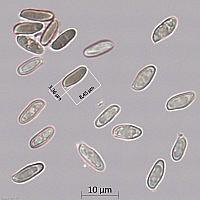 Маслёнок обыкновенный (Suillus luteus). Споры.