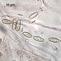 Маслёнок жёлто-бурый (Suillus variegatus). Споры.