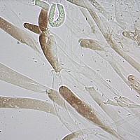 Плютей чёрноокаймлённый (Pluteus atromarginatus). Гифы пилеипеллиса.