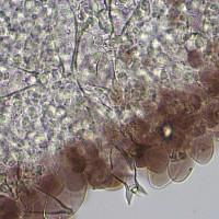 Плютей чёрноокаймлённый (Pluteus atromarginatus). Хейлоцистиды.