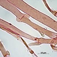 Плютей ивовый (Pluteus salicinus). Гифы.