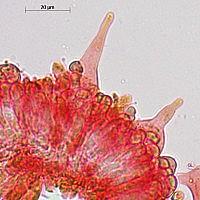 Атениелла Адонис (Atheniella adonis). Хейлоцистиды.