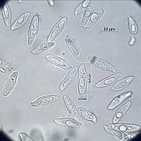 Лепиота крупноспоровая (Lepiota magnispora). Споры.