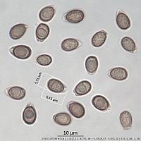 Трутовик плоский (Ganoderma applanatum). Споры.