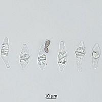 Строфария небесно-синяя (Stropharia caerulea). Плеврохризоцистиды.