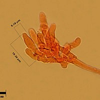 Лейкофолиота древесинная (Leucopholiota lignicola). Хейлоцистиды