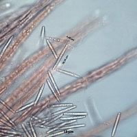 Толипокладиум длинносегментный (Tolypocladium longisegmentatum). Споры