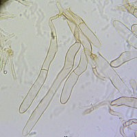 Лепиота гранжская (Lepiota grangei). Пилеипеллис
